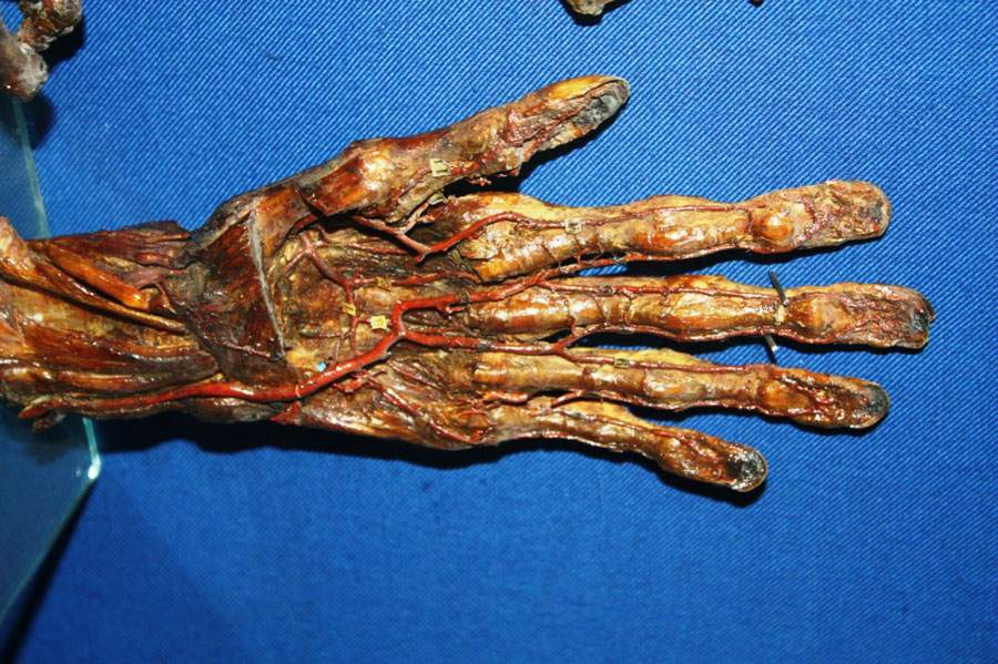 Мумифицированная рука